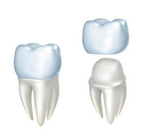 CEREC one-day dental crowns from your dentist in Franklin revolutionize the dental restoration process.